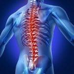 Dicas para evitar problemas ósseos