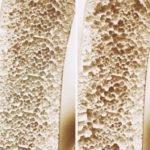 Osteoporose na Terceira Idade