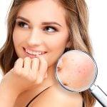 A acne pode ser classificada em cinco tipos!