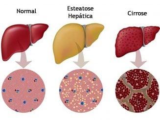 Esteatose ou doenças hepáticas gordurosas