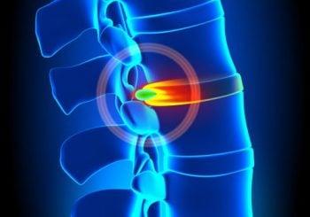 Você sente dor na coluna? Pode ser hérnia