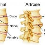 Você sabe o que é artrose?