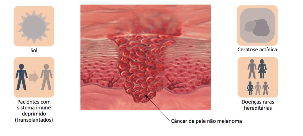 cancêr de pele não melanoma (1)