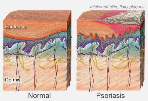 psoriase