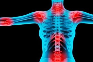 A Fibromialgia e exercícios, é uma síndrome dolorosa que se caracteriza pela presença de dor difusa com duração superior a três meses