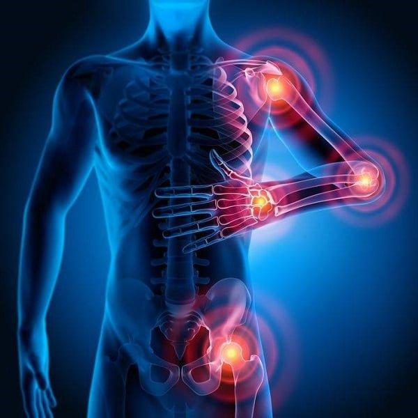 A Fibromialgia e exercícios